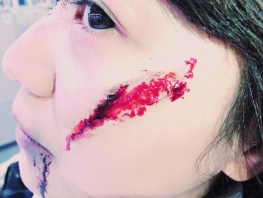 ▲左頬の切り傷